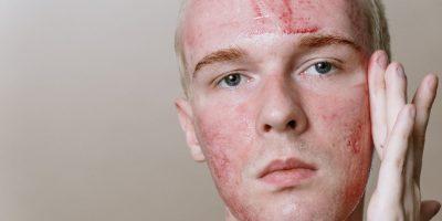 Verletztes Gesicht